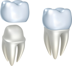 Dental Crowns in Hermon and Bangor, ME